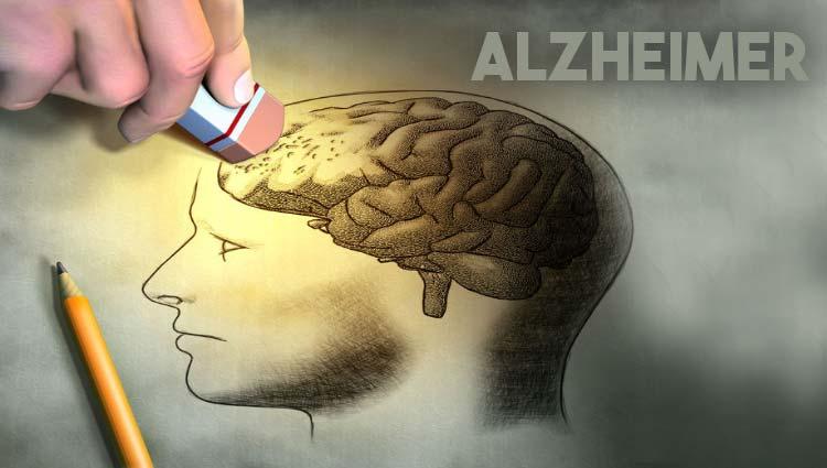 "Palestra: ""Alzheimer, Fatores de risco""."